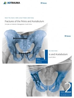 Fractures of the Pelvis and Acetabulum (AO)