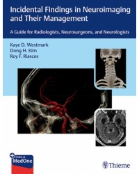 Incidental Findings in Neuroimaging and Their Management