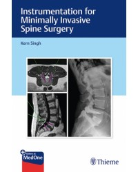 Instrumentation for Minimally Invasive Spine Surgery