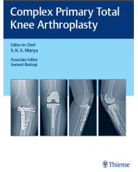 Complex Primary Total Knee Arthroplasty