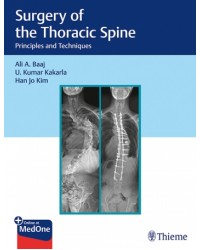 Surgery of the Thoracic Spine