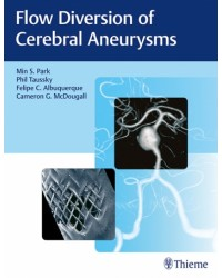 Flow Diversion of Cerebral Aneurysms