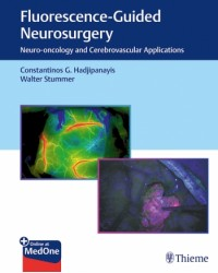 Fluorescence-Guided Neurosurgery