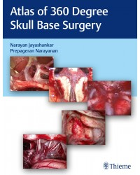 Atlas of 360 Degree Skull Base Surgery