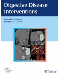 Digestive Disease Interventions