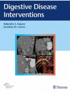 Digestive Disease Interventions