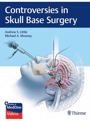 Controversies in Skull Base Surgery