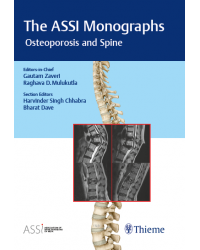 The ASSI Monographs Osteoporosis and Spine