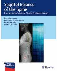 Sagittal Balance of the Spine