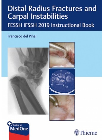 Distal Radius Fractures and Carpal Instabilities