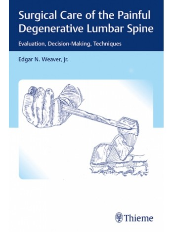 Surgical Care of the Painful Degenerative Lumbar Spine