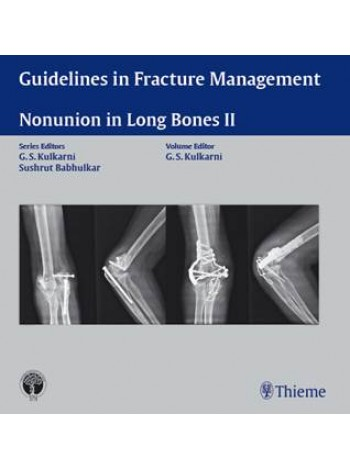 Guidelines in Fracture Management-Nonunion in Long Bones II